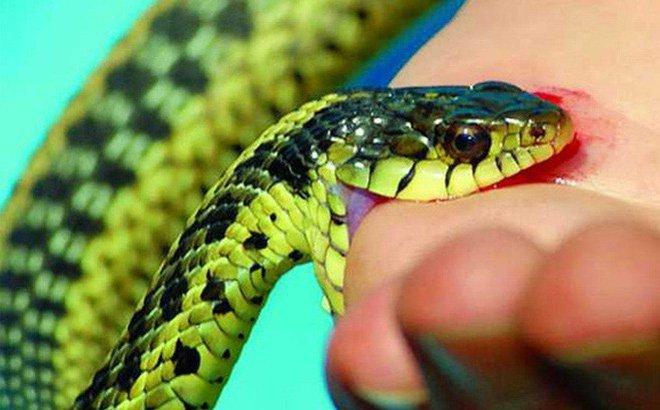 Xử trí đúng khi bị rắn độc cắn