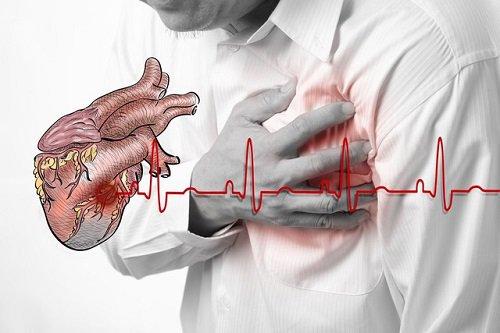 Thiếu máu tim thầm lặng: phát hiện sớm, giảm tổn thương